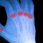 rheumathoide Arthritis